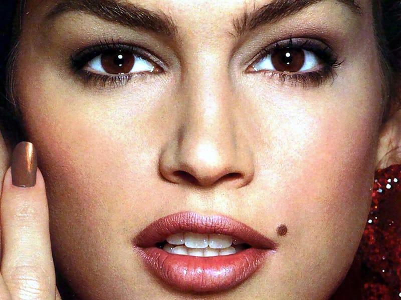Orang kulit putih lebih rentan terkena melanoma dibandingkan orang Asia atau Afrika. Via Voolas.com